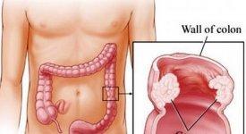 Il tumore del colon retto e l'efficacia di cure sempre più a misura di paziente