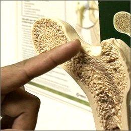 Ricerca: ossa nuove con un'iniezione rigenerante